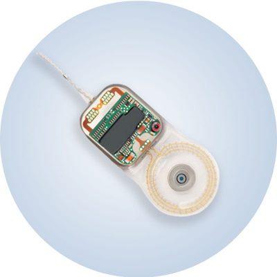 Implante-solucion